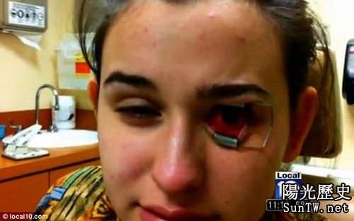隱形眼鏡藏變形蟲 少女眼角膜被蠶食險失明(圖)