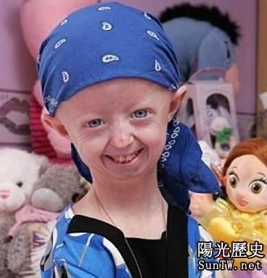 英14歲少女患早衰症恍如105歲老太