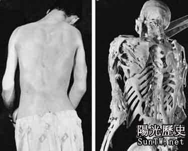 人類史上最怪異的病例 令人瑟瑟發抖
