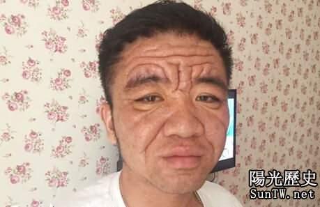 30歲男子滿臉皺紋如80歲老頭